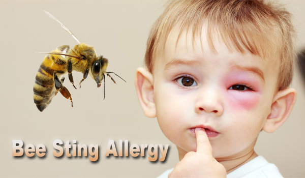 Bee Sting Allergy