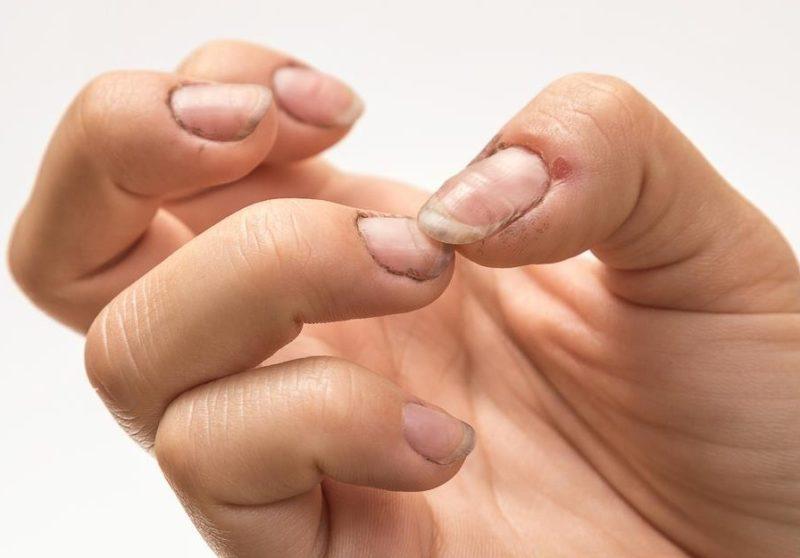 Fingernail fungus treatment