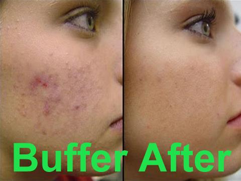 Naobataeduque for Fish oil cause acne