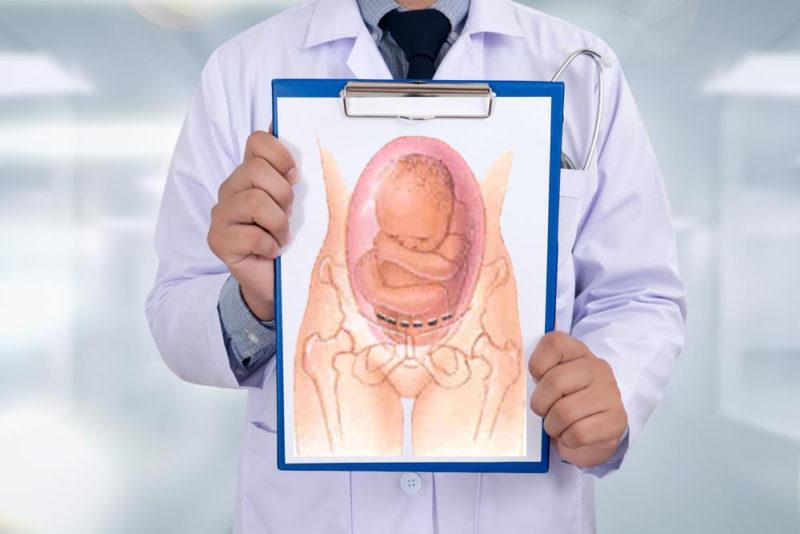 tubal pregnancy symptoms