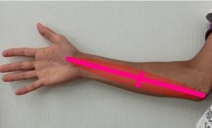 humeral medial epicondylitis